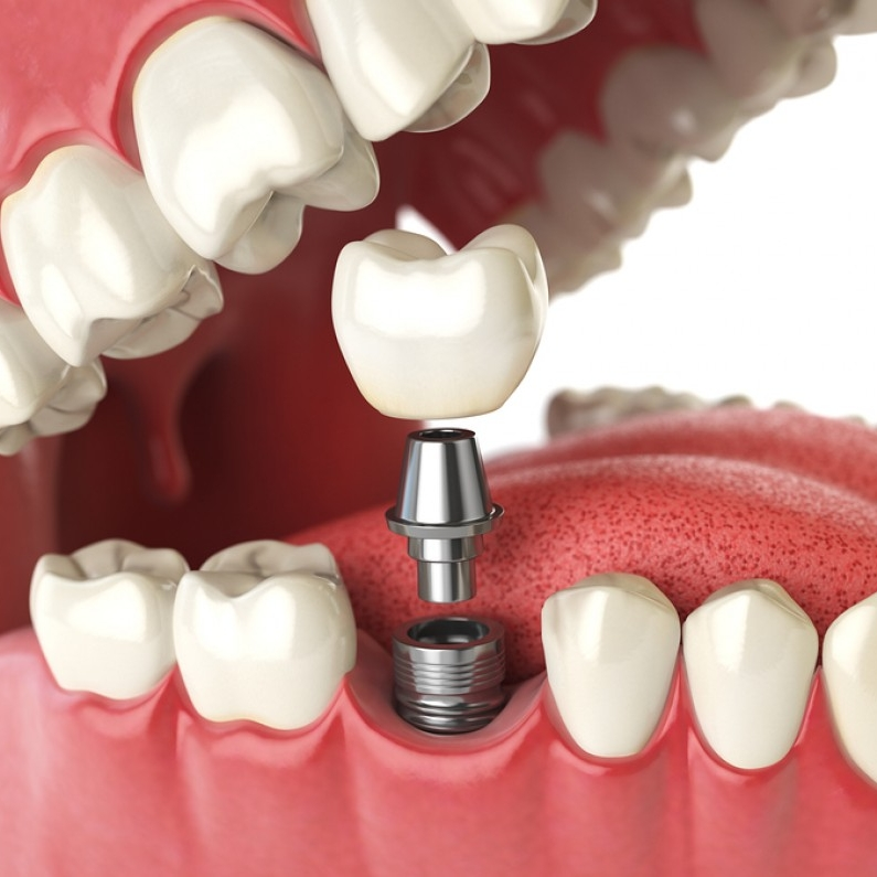 Tooth implants1.jpg