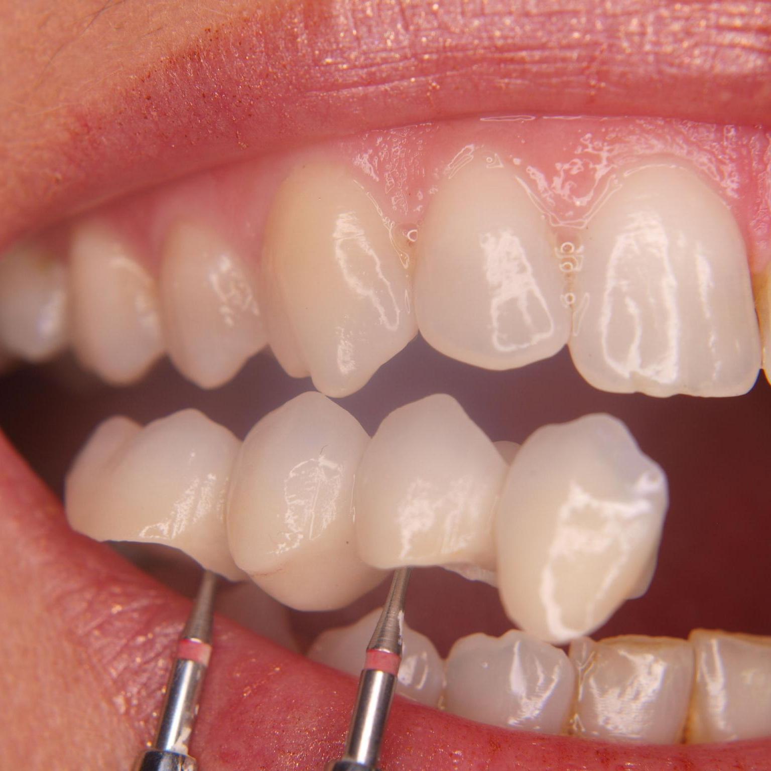 Dental prosthetics2.jpg