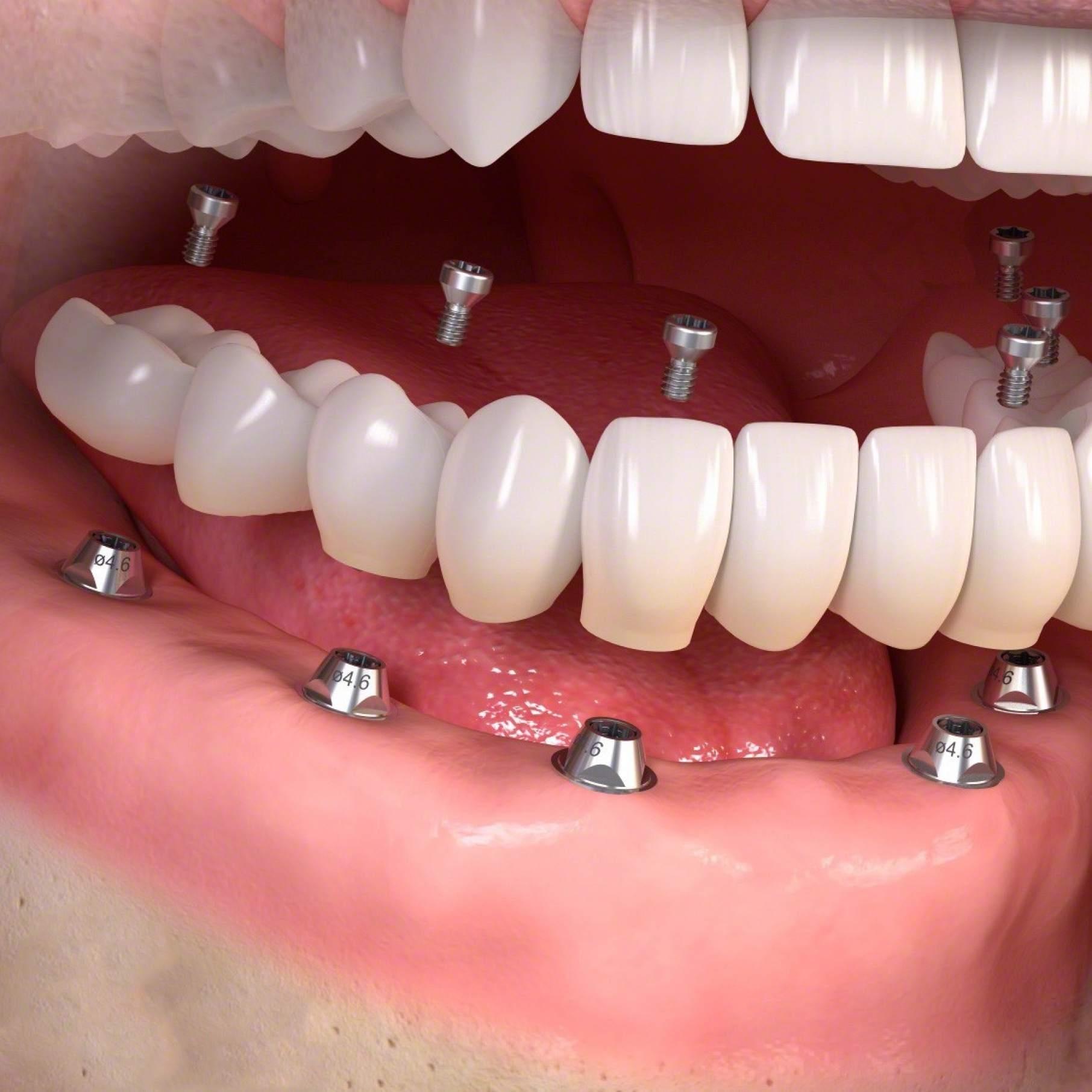 Dental prosthetics4.jpg