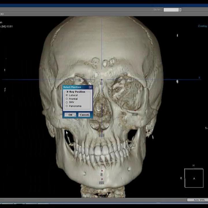 3d-dental-xray-4.jpg