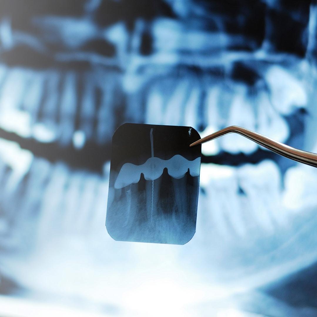 3d-dental-xray-2.jpg