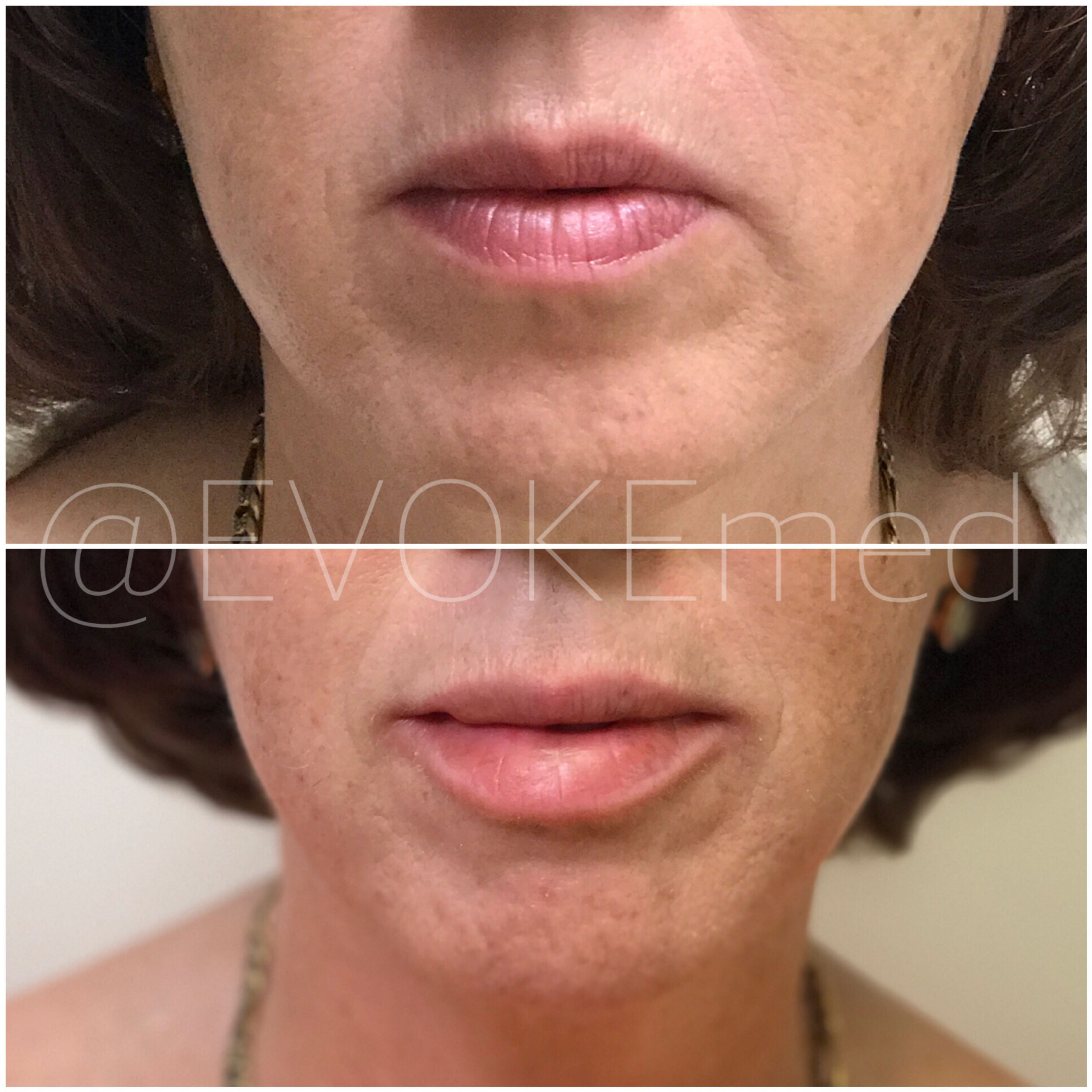Anti-Aging Lip Augmentation with Filler