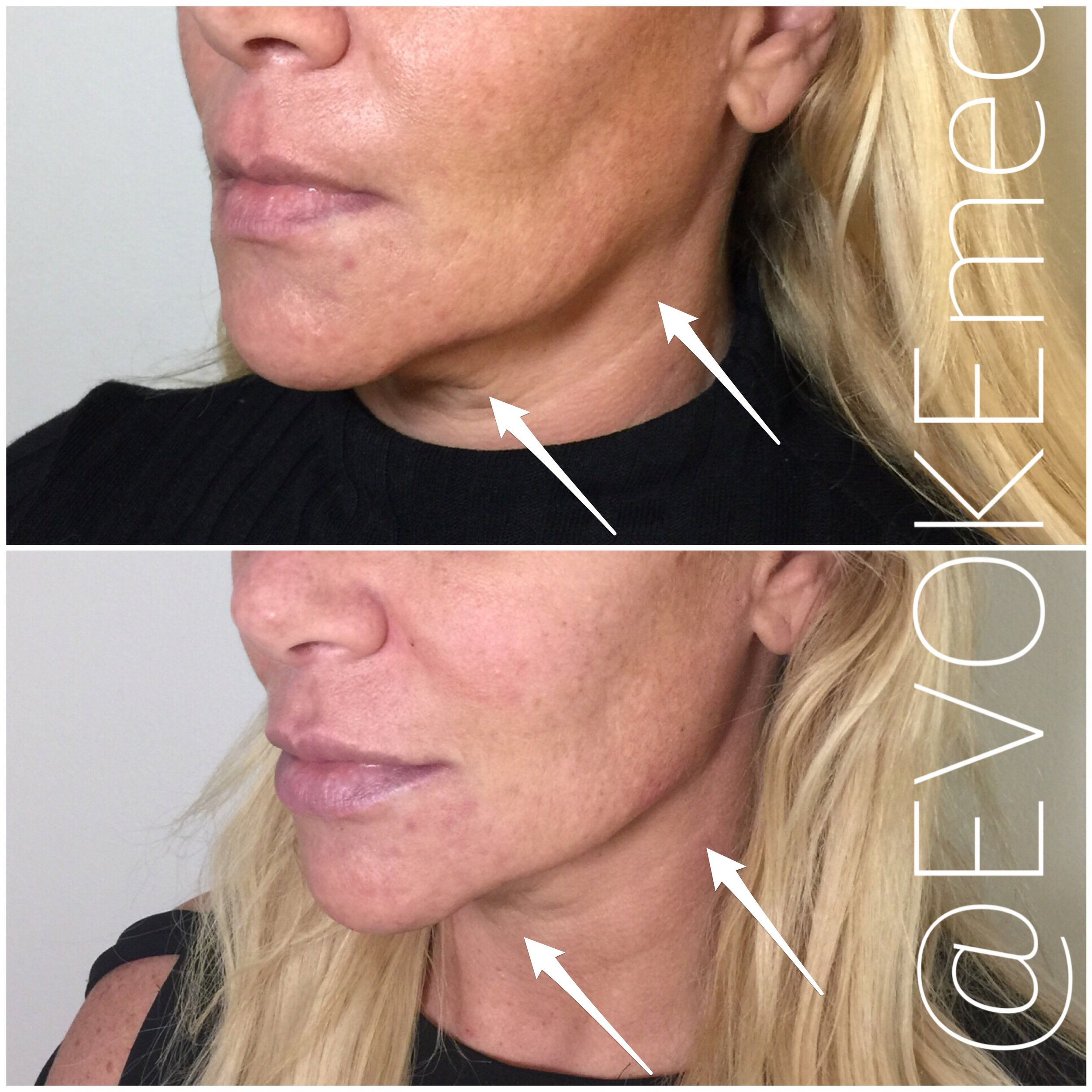 Chin Augmentation and Jawline Contouring with Filler