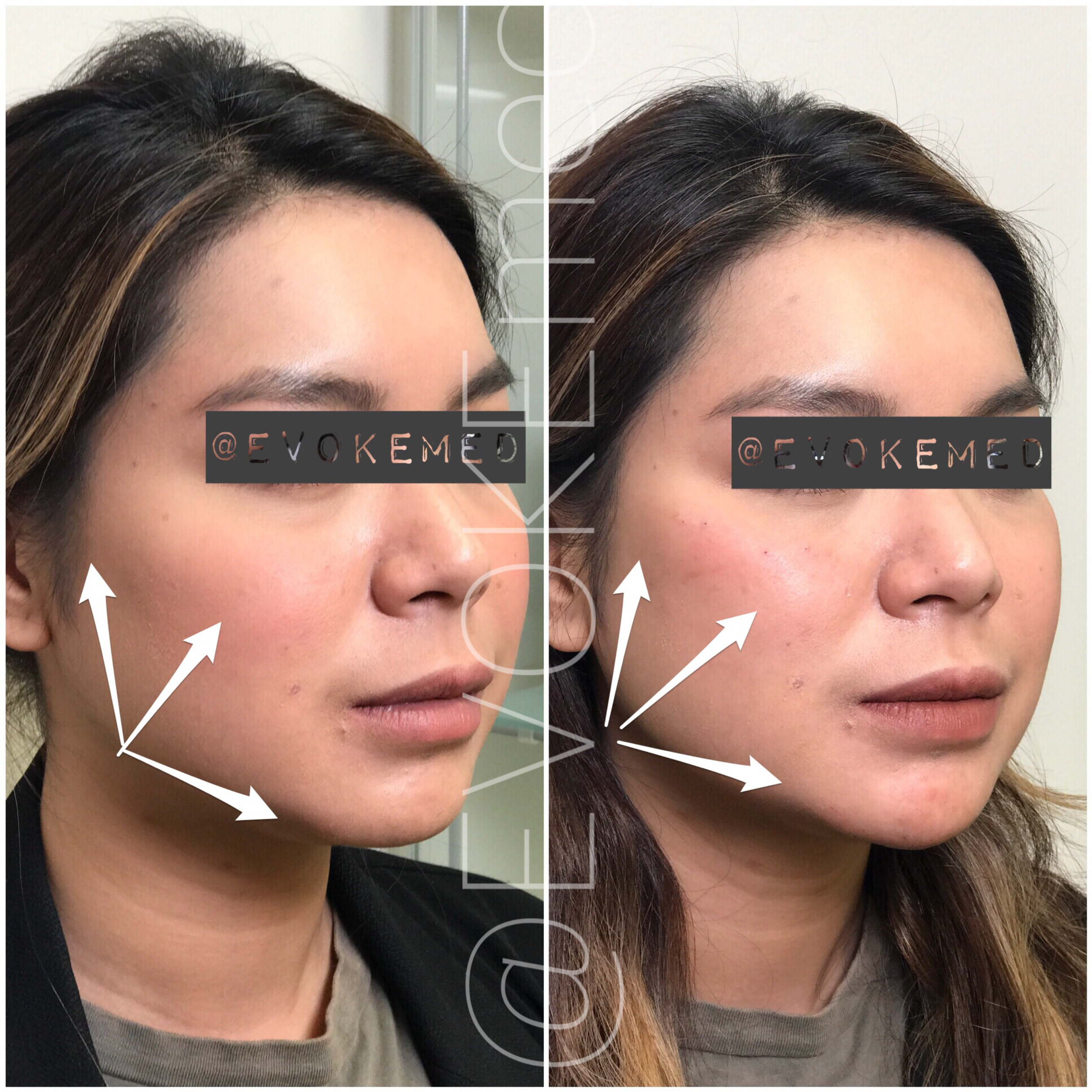Facial Contouring with Filler