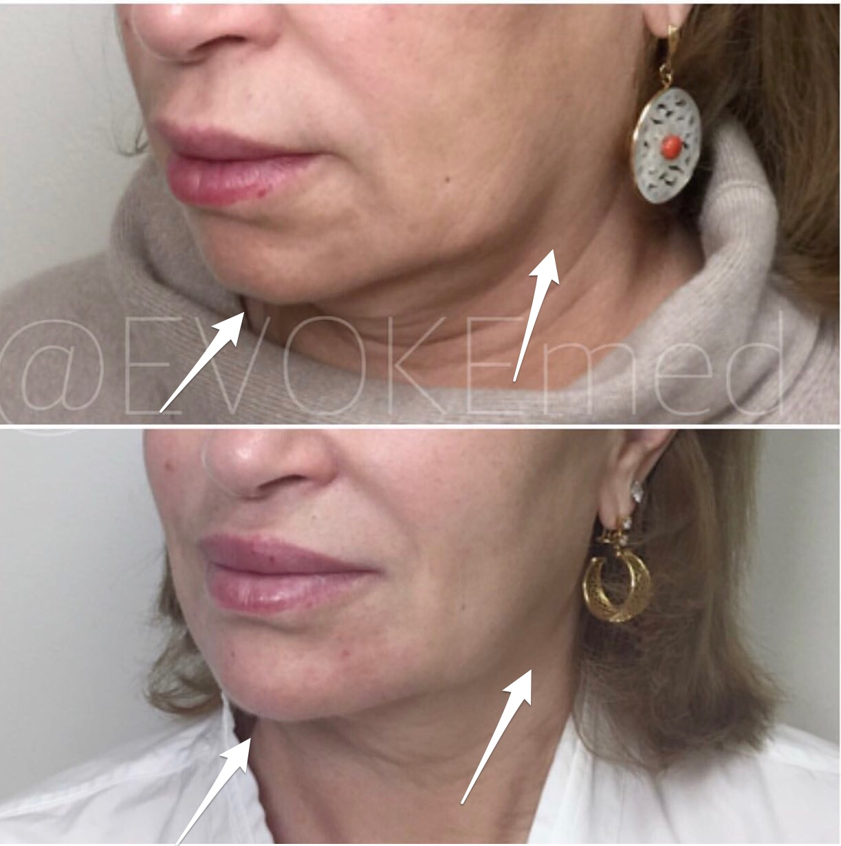 Jawline Contouring and Chin Augmentation with Filler