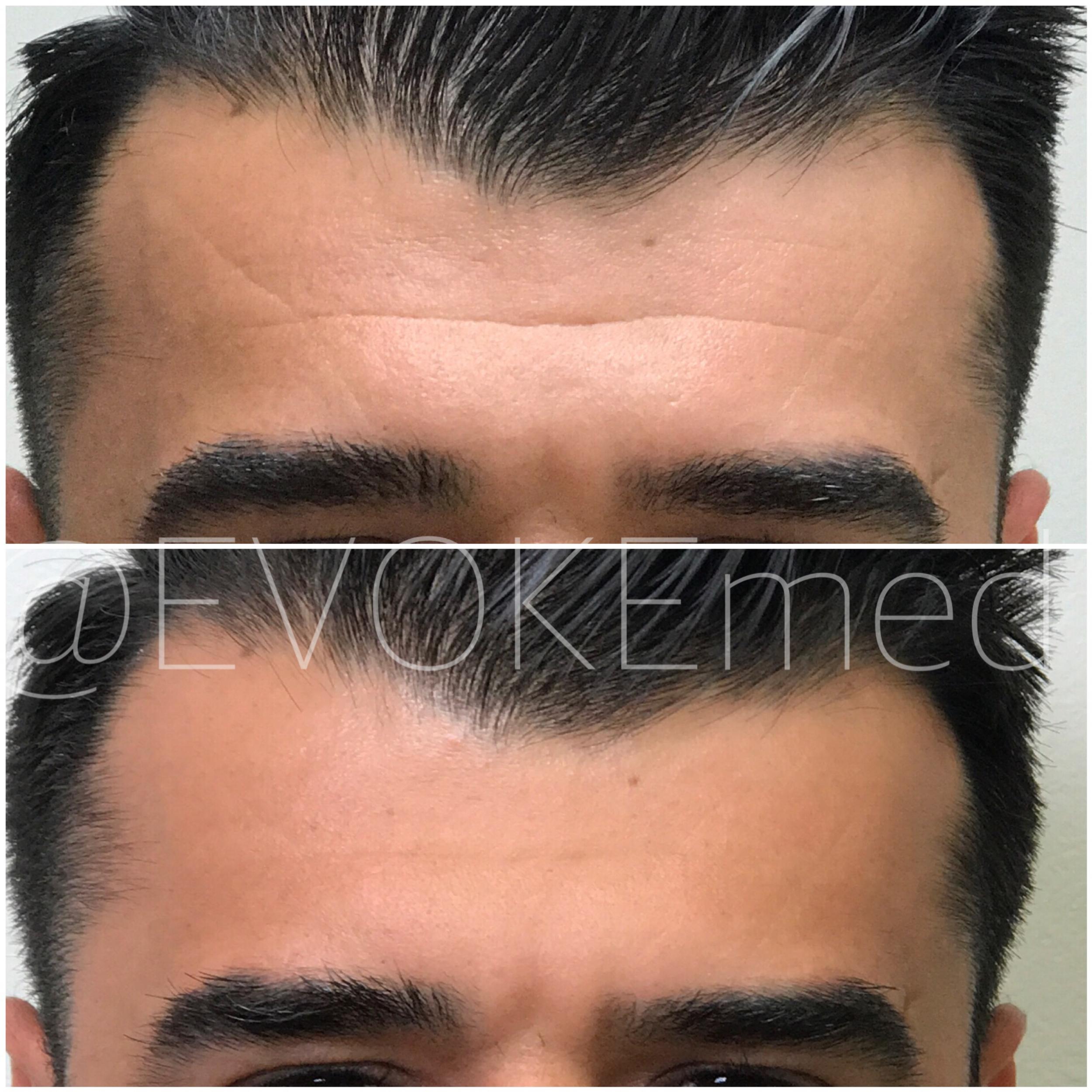Botox Treatment for Men