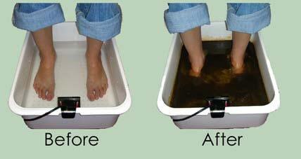 Ion cleanse foot detox bath