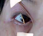 山東濰坊法輪功學員李秀珍演示在濟南監獄所受迫害:連續28天不話睡覺,睜不開眼時,被人性全無的惡人就用膠帶紙粘在眼眶周圍上下上拉扯,或用掃帚棒支起眼皮。(明慧網)