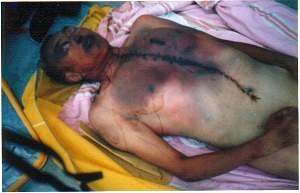 劉玉風(山東)於2000年7月23日,被文登看守所警察毒打致死,終年64歲。圖為傷痕纍纍的屍體。