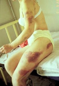 2001年5月14日晚9點,女法輪功學員被北京惡警當街毒打並強姦。