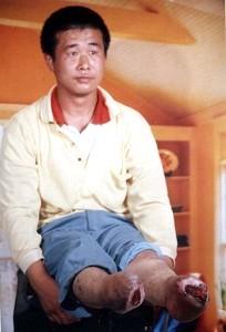 被酷刑失去雙腳的法輪功學員王新春又被惡警上「大鐵架子」折磨