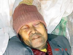 法輪功學員郭士軍被哈爾濱長林子勞教所毒打致死的證據,遺體傷痕纍纍