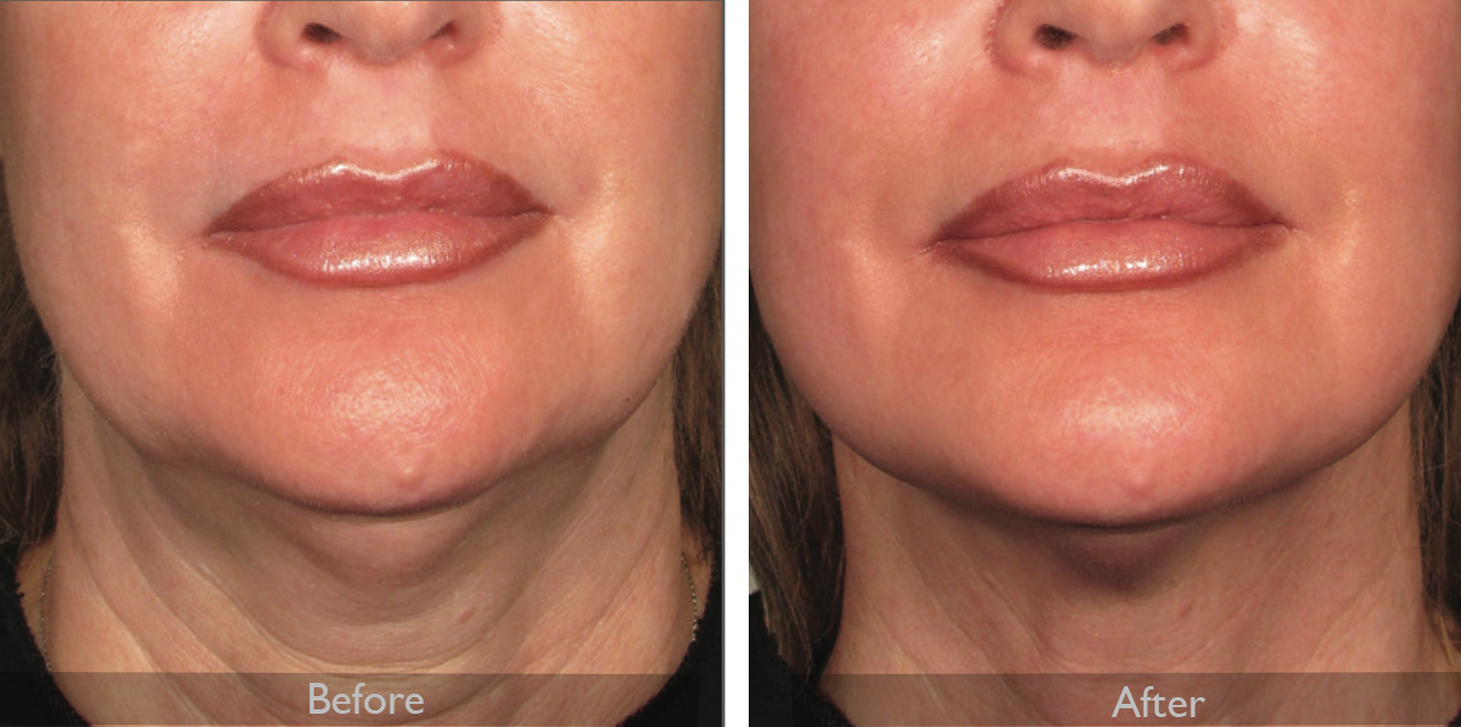 Ultherapy before after .jpg