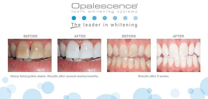 Opalescence-Teeth-Whitening-St-Clair-MDC.jpg