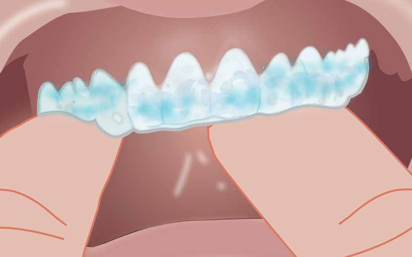 Insert tray  Insert the tray in your mouth and lightly tap it to adapt the sides to your teeth. Wear time depends on which concentration of Opalescence you use.  Opalescence 10%: 8–10 hours or overnight  Opalescence 15%: 4–6 hours  Opalescence 20%: 2–4 hours  Opalescence 35%: 30 minutes