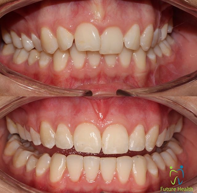 Have you thought of the benefits of having braces? Other than the gorgeous smile that we gave our client, Orthodontic treatment actually prevent gum disease, cavities, injury, bone recession. It gives a tremendous amount of health benefits including chewing better, digesting better, speech, facial symmetry and self-Esteem. Don't ever underestimate those benefits!  We talk about orthodontic treatment in general as they can be anything from Braces (metal or ceramic), Invisalign or Expanders. It's the greatest gift you can give yourself or your loved ones. 🎁  #yourjawsyourlife #orthdontics #orthopaedics