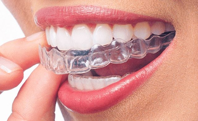 Get ready for something great 🙀 Start with a smile 😬  Invisalign now available ✨ What is Invisalign?  The Invisalign system is a virtually invisible treatment that uses an innovative approach to gently yet effectively straighten your teeth.  Through a series of custom- made , removable aligners made with unique smartforce technology, the Invisalign system gradually and predictably moves your teeth to an ideal position. Book now for a consultation 9078 6295 ✨✨✨