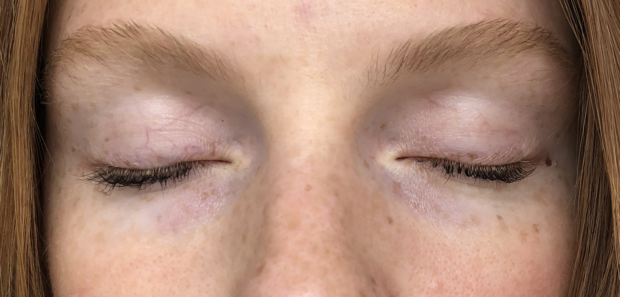 Above is a close up of my eyes after using the VIICode Eye Cream for 3 weeks. I used it on my left (your right) eye only.