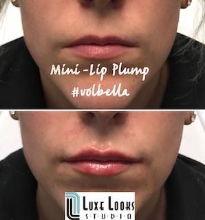 Mini+Lip+Plump.jpg
