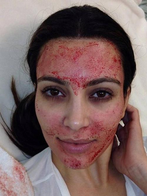 Facials: The Good, The Better & The Crazy - Kim Kardashian Vampire Facial
