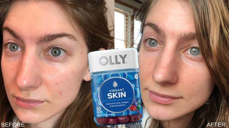 What's Up With Beauty Supplements? Olly Skin Vitamins Before and After Picture.jpg