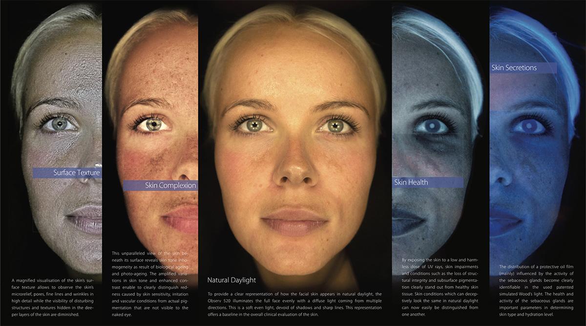 Observ 520 Skin Imaging