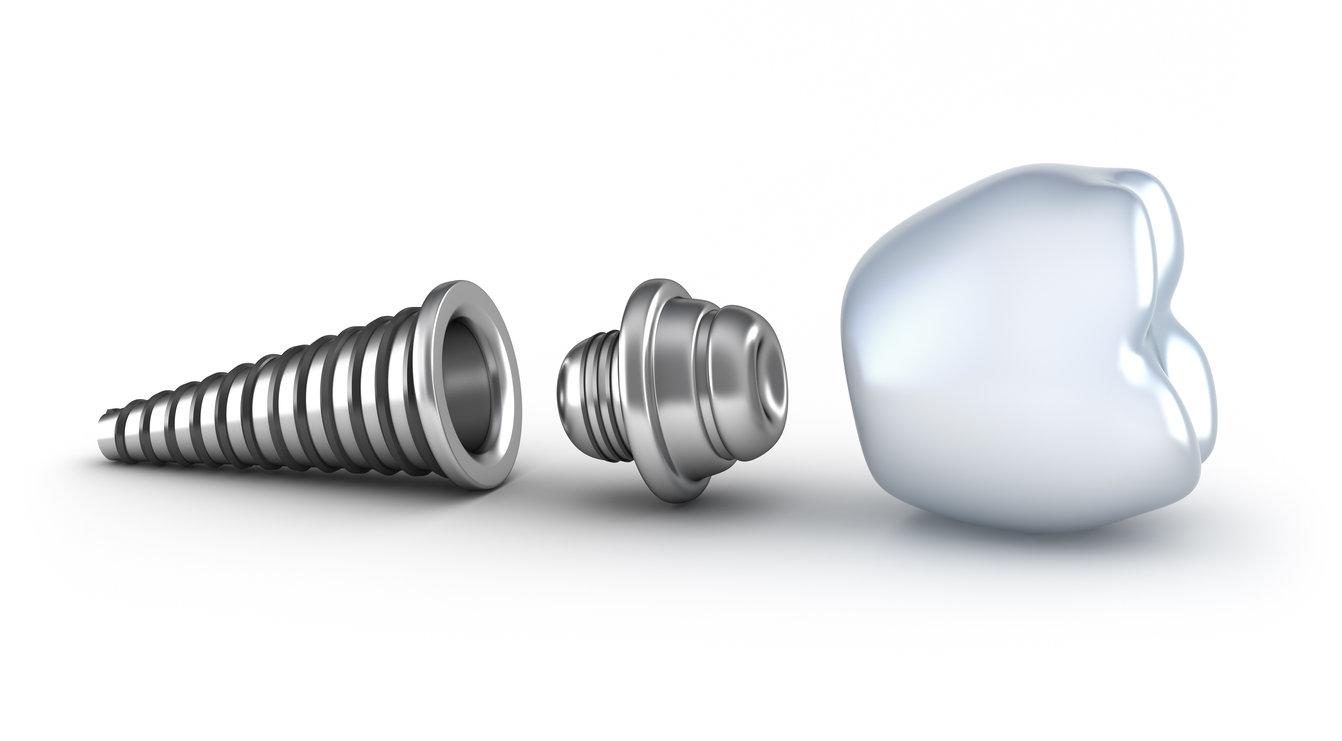 Dental Implants - Our aim is to completely restore your teeth to your ideal requirements using the treatment techniques that are best for you..