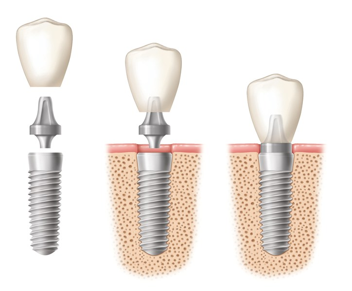 dental implant geelong dental centre.jpg