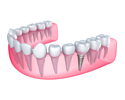 dental implant geelong dentist geelong.png