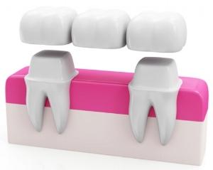 dental bridge geelong dental centre.jpg