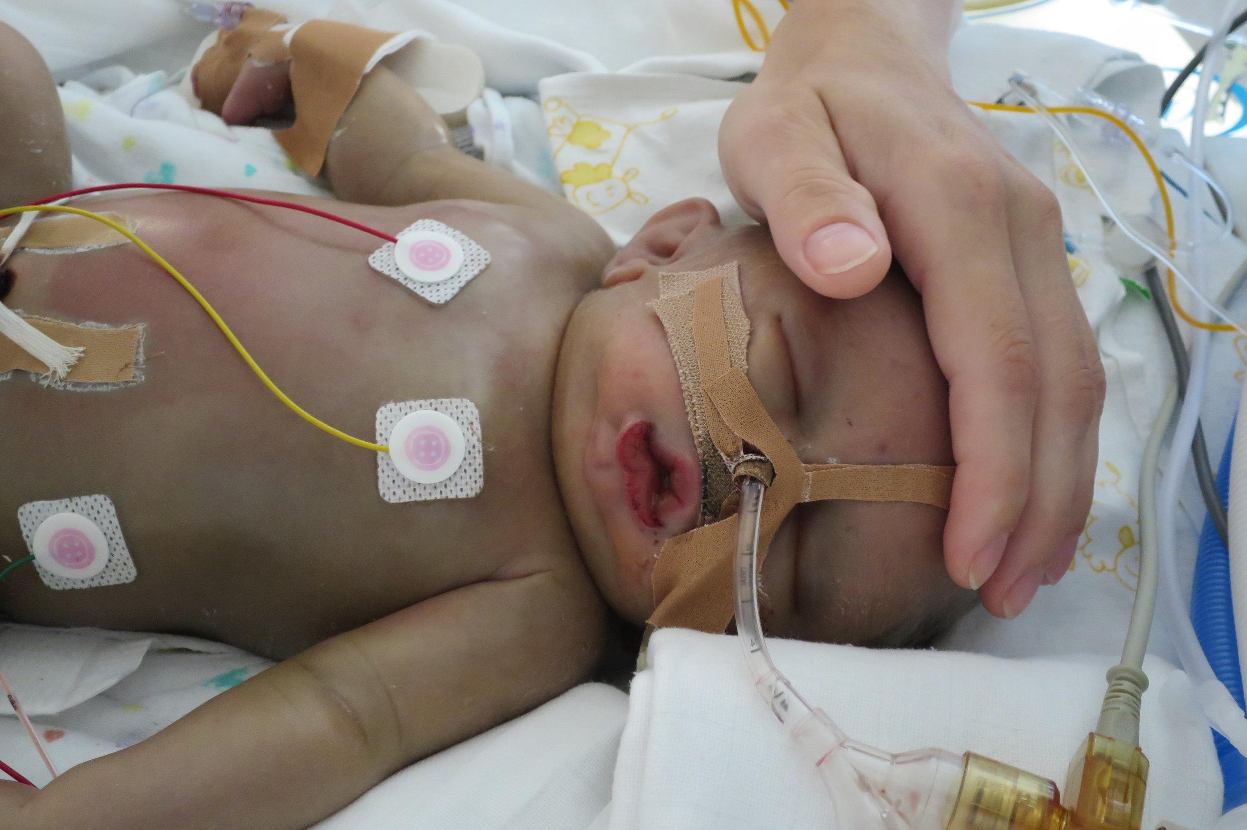 Deel 2d - Noud na zijn longbloeding.JPG