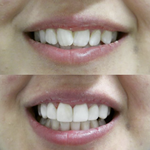 Tx Smiles No Prep Veneers Before After 0002.png