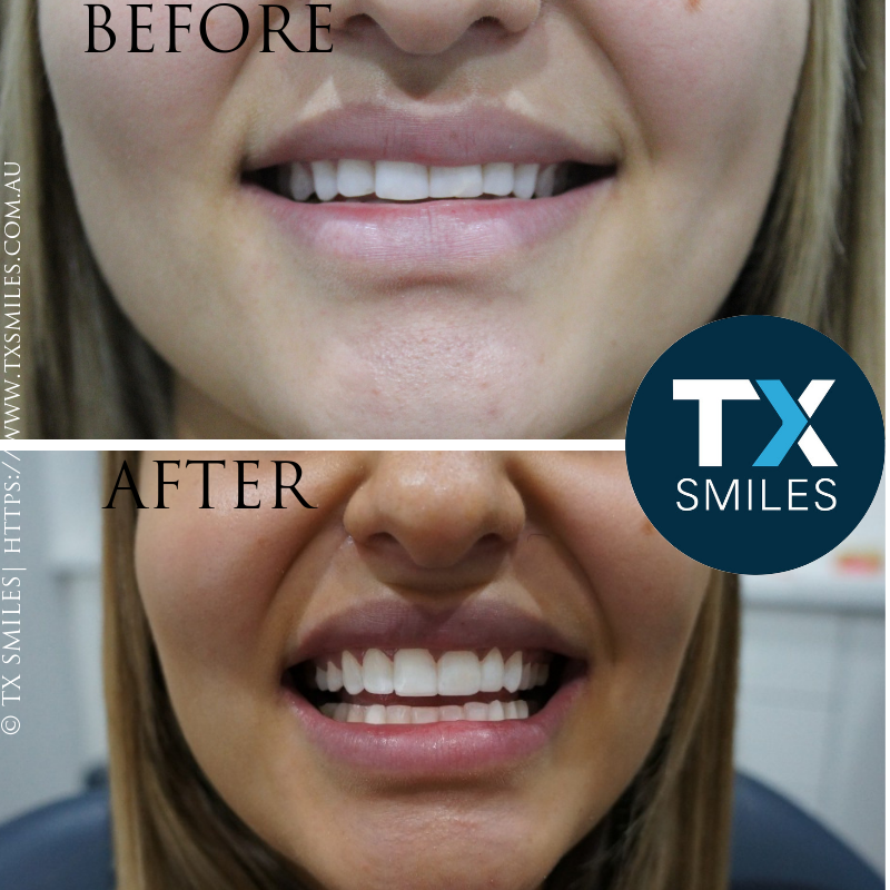 Tx Smiles No Prep Veneers Before After 0001.png