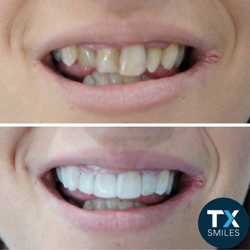 TX veneers before and after 005.png