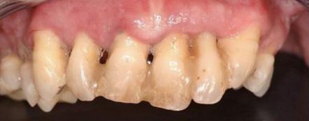 implantsmall-before.jpg
