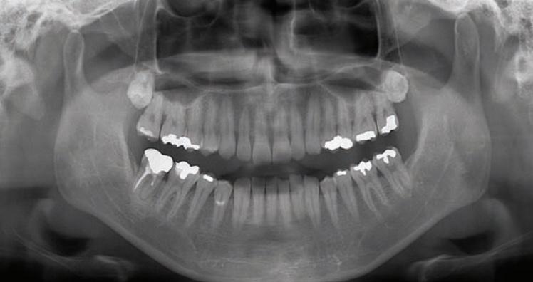 Panoramic Digital X-Ray (OPG)