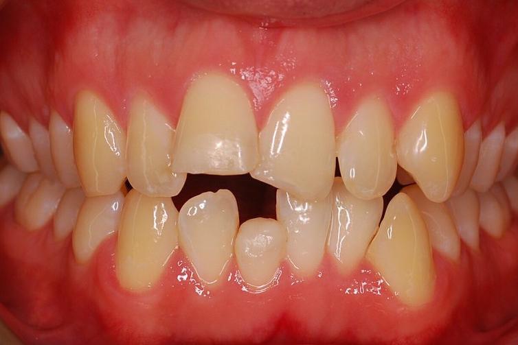 Orthodontics Whangarei | Kowhai Dental