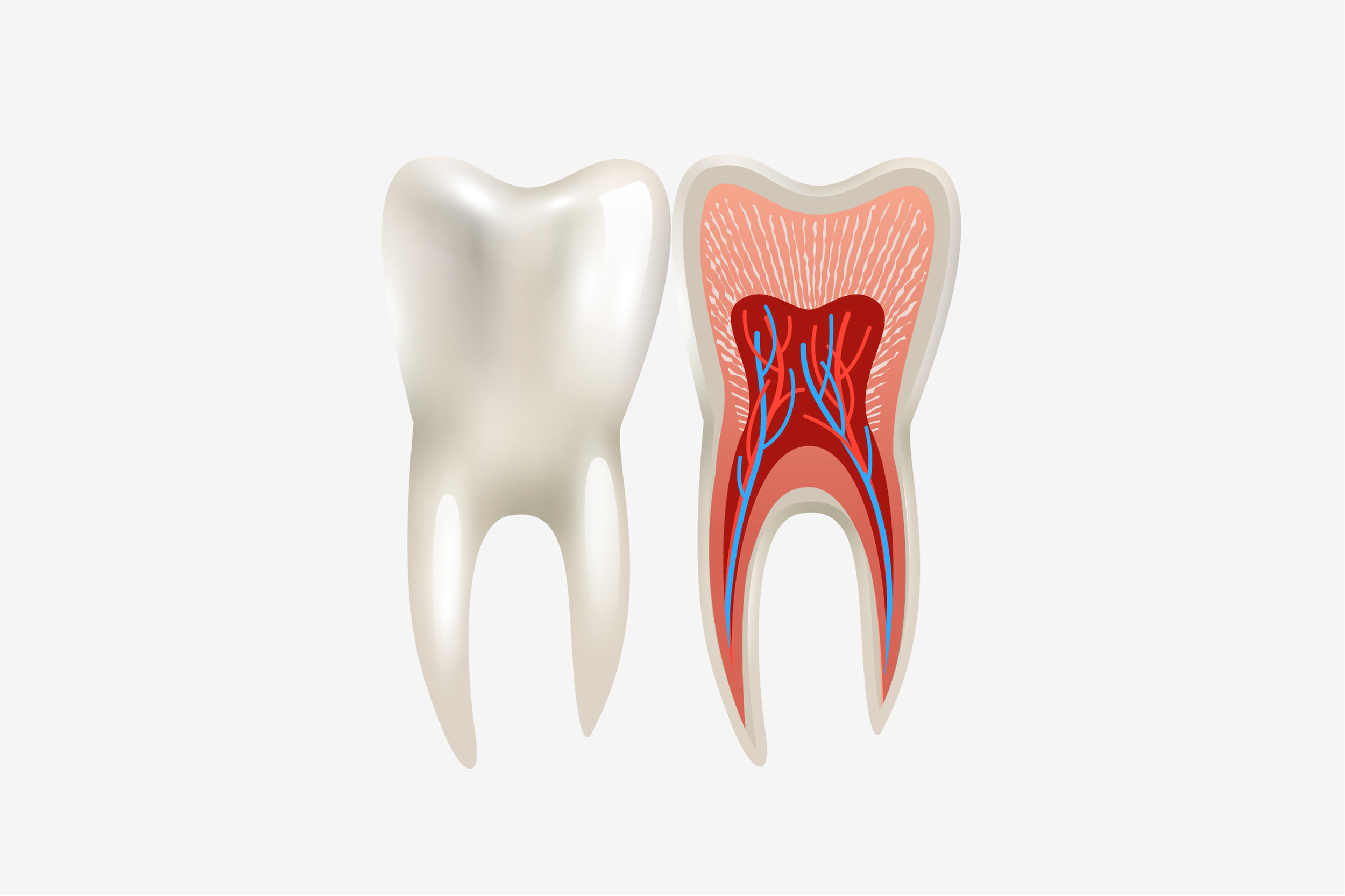 Root-Canal2.jpg