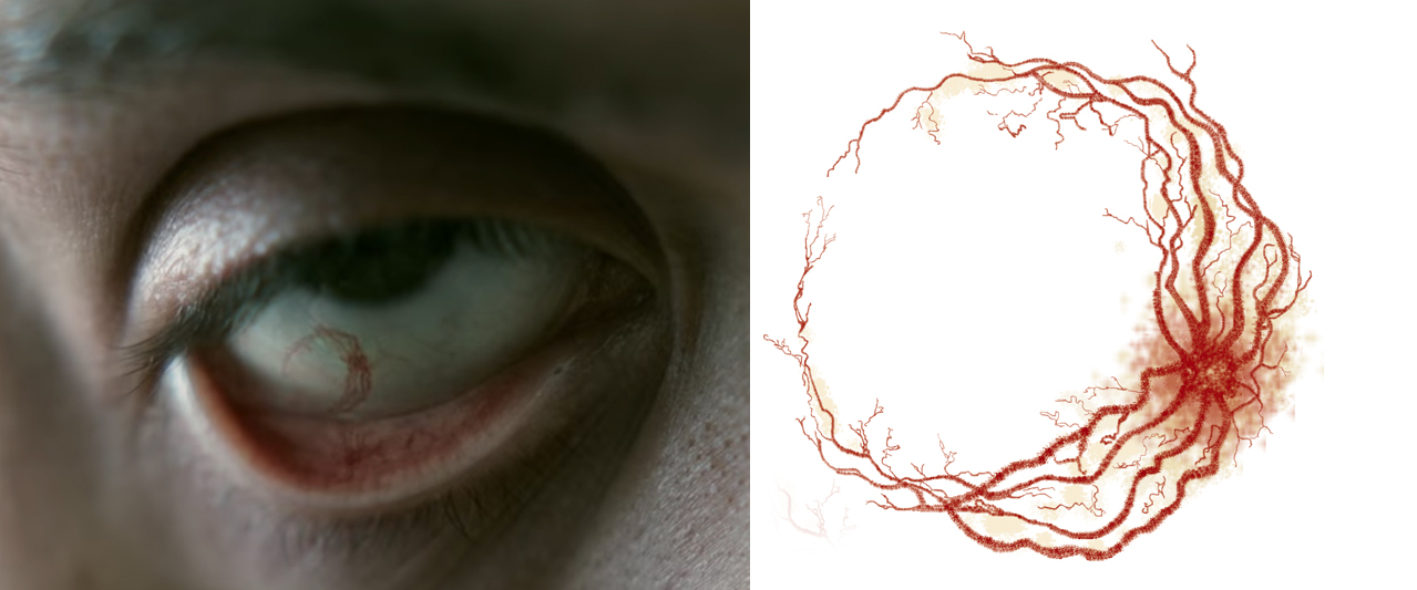 eye scar1.jpg