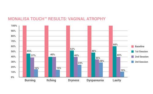 MonalisaTouchResults-vaginal-atrophy-chart2.jpg