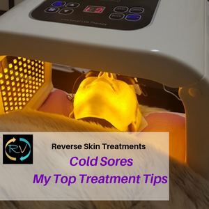 cold sore -treatments