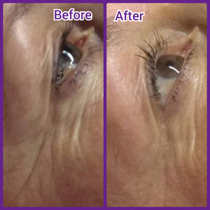 Micro-needling Anti-ageing Results