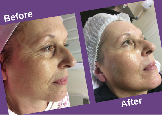 microneedling-before and after-montrose
