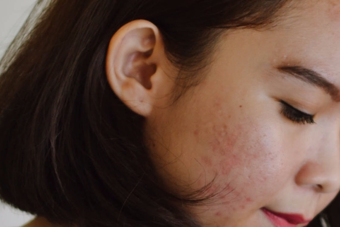Reduce Acne Scarring -