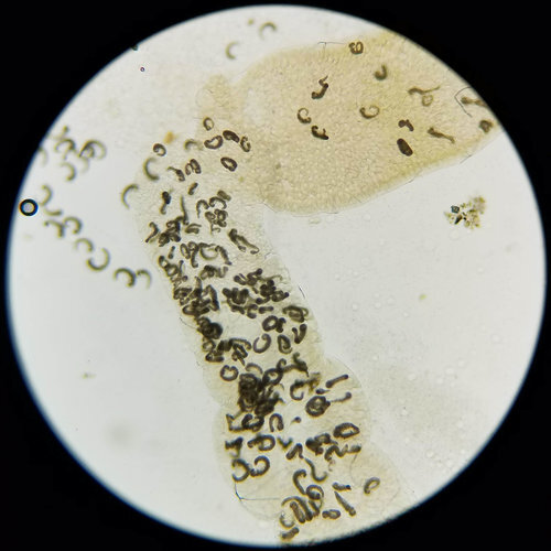 Gregarine parasites in larval midgut (photo: Lexie Beckermann_)