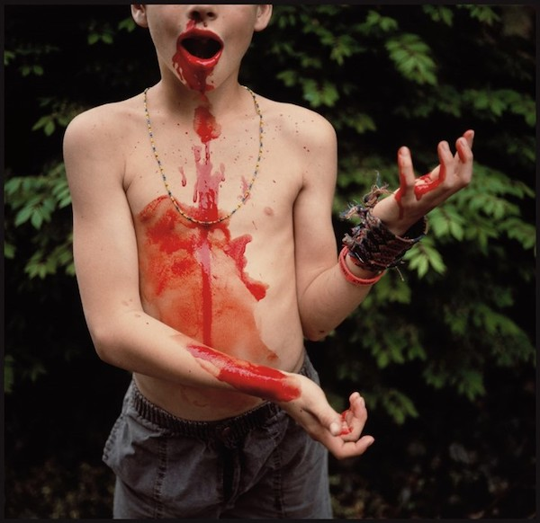 "Sally Mann, ""Bloody Nose"" (1991)."
