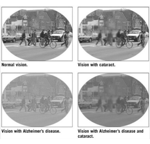 vision of patients AD, NML, C.jpeg