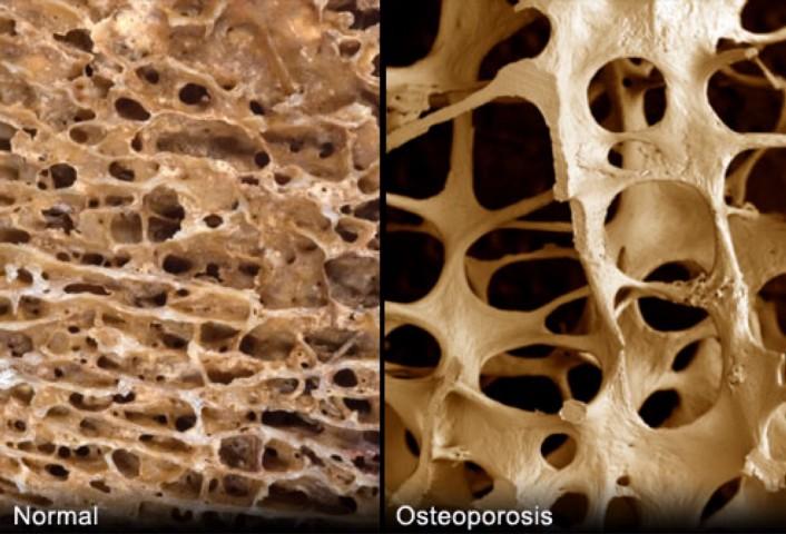 osteoporosis.jpeg