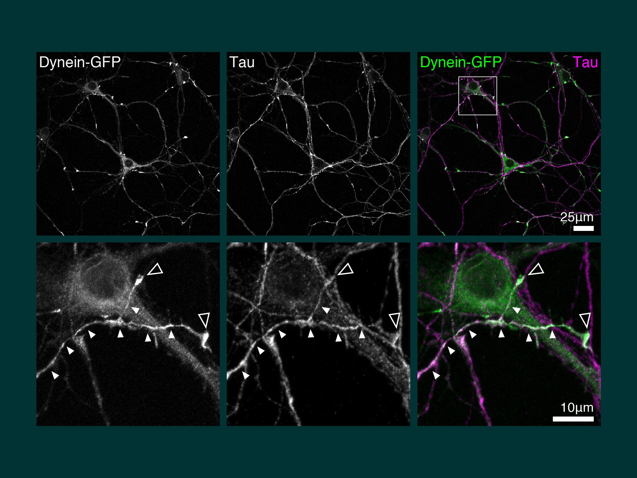 Dynein accumulates in the distal axon