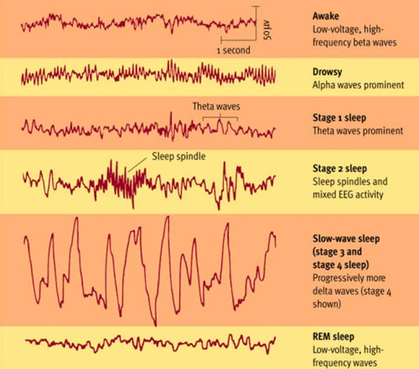 (The image above shows the brainwave activity of sleep. As you can see, the slow-wave-sleep brainwaves occur during stay 4 which is deep sleep).
